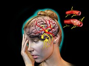 Human Condition Art - Vascular Causes Of Headaches by Jose Antonio PeÑas