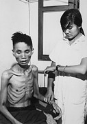 Starvation Posters - Victim Of Viet Cong Starvation Poster by Everett