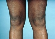 Arthritis Prints - View Of Knees Affected By Osteoarthritis Print by