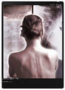 Scared Framed Prints - Woman With Neck X-ray Framed Print by Miriam Maslo