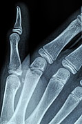 X-ray Image Art - X-ray image of boys hand by Sami Sarkis