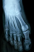 X-ray Image Art - X-ray image of mature mans feet by Sami Sarkis