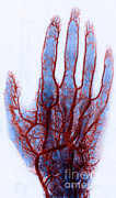 X-ray Image Art - X-ray Of Blood Vessels by Science Source