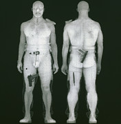 Brother Ray Prints - X-ray Views Of Man During Bodysearch Surveillance Print by American Science & Engineering