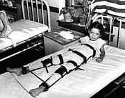 Infantile Paralysis Photos - Young Polio Victim In Bed With A Body by Everett