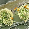 Dividing Cancer Cell, Sem by Science Photo Library