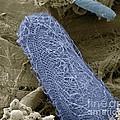 Ciliate Protozoan, Sem by Steve Gschmeissner