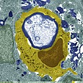Macrophage Engulfing A Nerve Cell, Tem by Science Photo Library