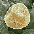 Kiwi Fruit Pollen Grain, Sem by Steve Gschmeissner
