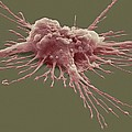 Pluripotent Stem Cell, Sem by Steve Gschmeissner