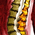 Spine Degeneration, Mri Scan Print by Du Cane Medical Imaging Ltd