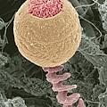 Vorticella Protozoan, Sem by Steve Gschmeissner