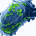 Lymphocyte With Hiv Cluster by Science Source