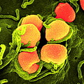 Gonorrhoea Bacteria, Sem by