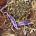 Macrophage Attacking A Foreign Body, Sem by