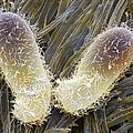 Chilodonella Ciliate Protozoan, Sem by Power And Syred