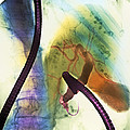 Coloured X-ray Of Gall Bladder During Endoscopy by