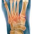 Crushed Broken Foot, X-ray Print by