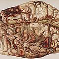 Encircling Gunshot-wound In Brain, 1898 by Science Source
