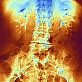 False-col X-ray Of Lumbar Spine Of Woman by Pasieka
