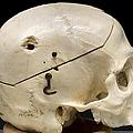 Gunshot Trauma To Skull, 1950s by Science Source