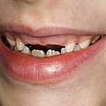 Loss Of Milk Teeth by Lawrence Lawry