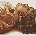Murder Victim 1898 by Science Source