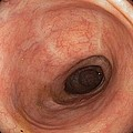 Scars In Colon After Ulcerative Colitis by Gastrolab