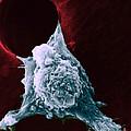 Sem Of Metastasis by Science Source