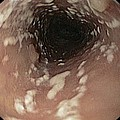Thrush In The Oesophagus by Gastrolab