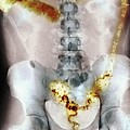 Ulcerative Colitis, X-ray by