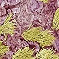 Uterine Cancer, Sem by Steve Gschmeissner