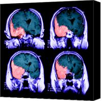 Invasive Canvas Prints - Meningioma Canvas Print by Medical Body Scans