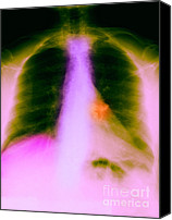 Mild Canvas Prints - X-ray Of Calcified Hilar Lymph Nodes Canvas Print by Science Source