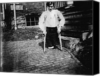 Amputee Canvas Prints - Child Labor, Frank P., Legs Were Cut Canvas Print by Everett