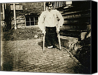 Amputee Canvas Prints - Child Labor, Frank, Whose Legs Were Cut Canvas Print by Everett