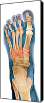 Injured Canvas Prints - Crushed Broken Foot, X-ray Canvas Print by