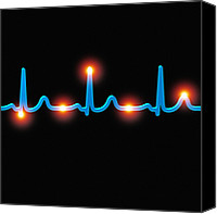 Contraction Canvas Prints - Ecg Of A Normal Heart Rate Canvas Print by Mehau Kulyk