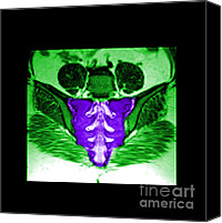 Sacral Canvas Prints - Mri Of Normal Sacrum Canvas Print by Medical Body Scans