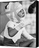 Bandages Canvas Prints - Young Victim Of Dak Son Massacre. 600 Canvas Print by Everett