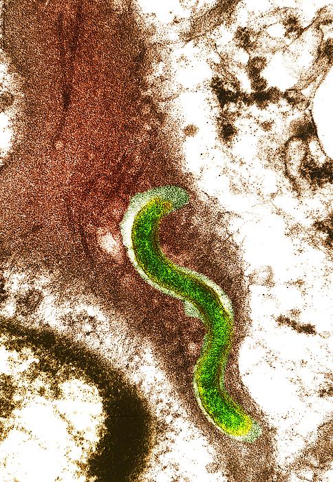 Syphilis Bacterium (treponema Pallidum) Print by Biomedical Imaging Unit, Southampton General Hospital