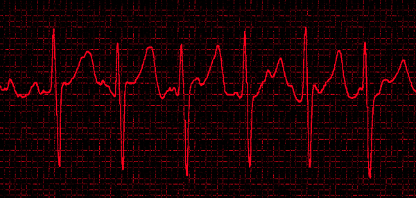 Atrial Fibrillation Print by Science Source
