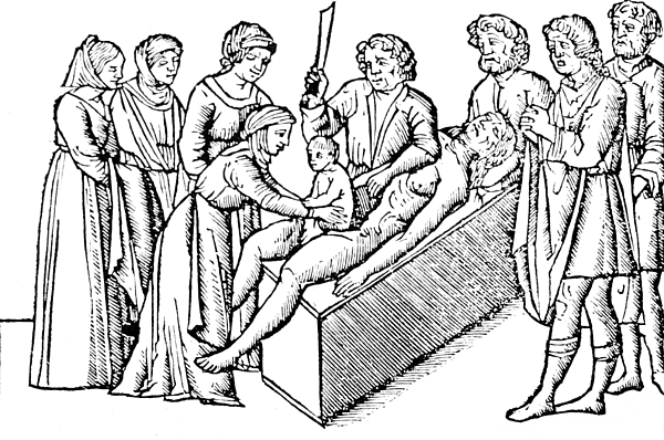 Cesarean Section 16th Century Print by Science Source