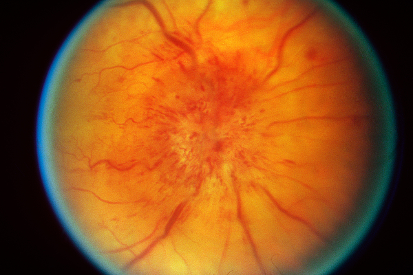Retinal Papilledema Print by Science Source
