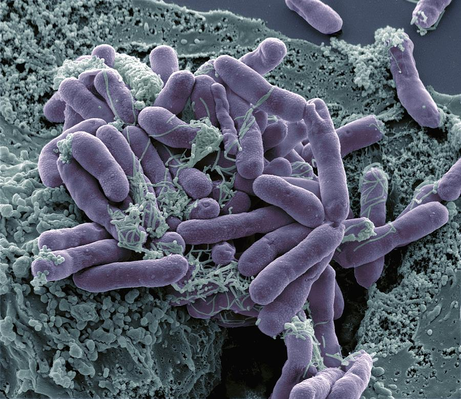 Escherichia Coli Photograph - Bacterial Contamination, Sem by Steve Gschmeissner
