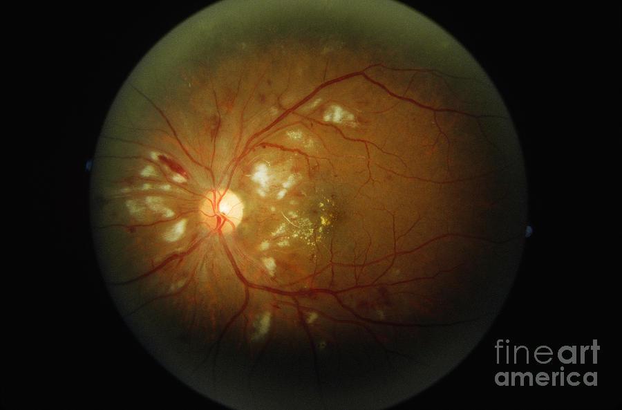 Blood Vessels Photograph - Cmv Retinitis by Science Source