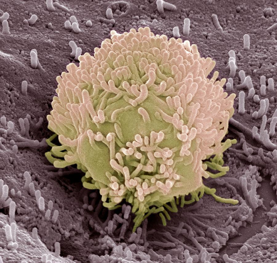 Cancer Photograph - Colorectal Cancer Cell by Steve Gschmeissner