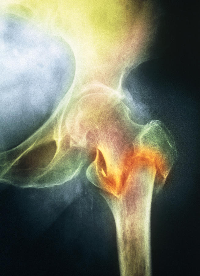 Osteoporosis Photograph - Coloured X-ray Of Femur Fracture In Osteoporosis by Medical Photo Nhs Lothian