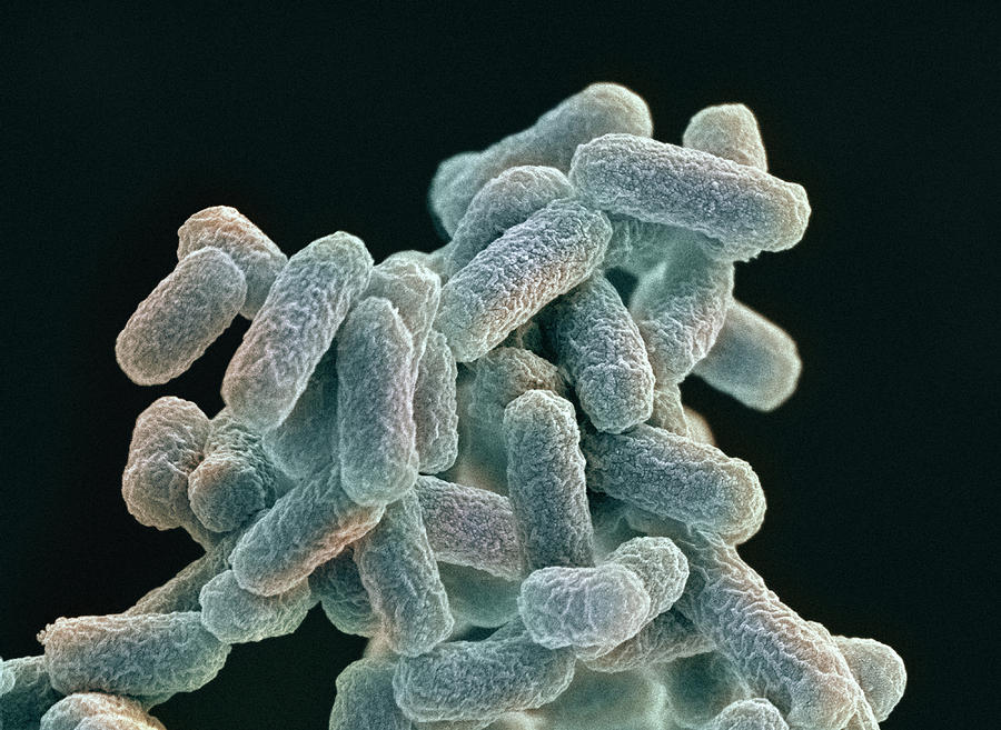 an overview of coli bacteria E coli is the prominent cause of enteritis, urinary tract infection, septicaemia   the article also provides an overview of the current knowledge.