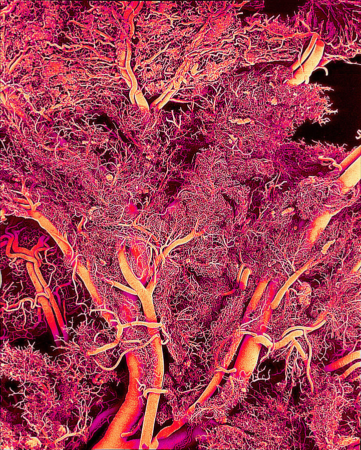 Sem Photograph - Blood Vessels, Sem by Susumu Nishinaga